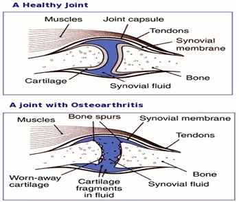 what is degenerative joint disease - symptoms - treatment