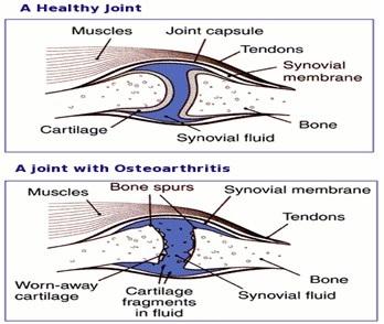 what is degenerative joint disease - symptoms - treatment